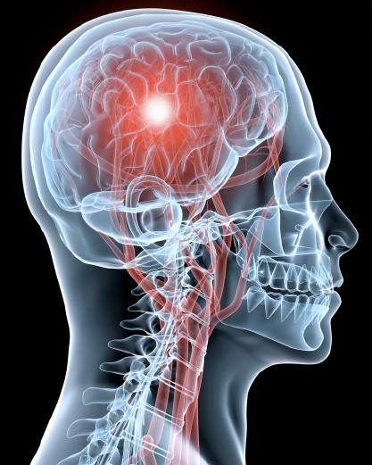 BRSC Concussion Protocol